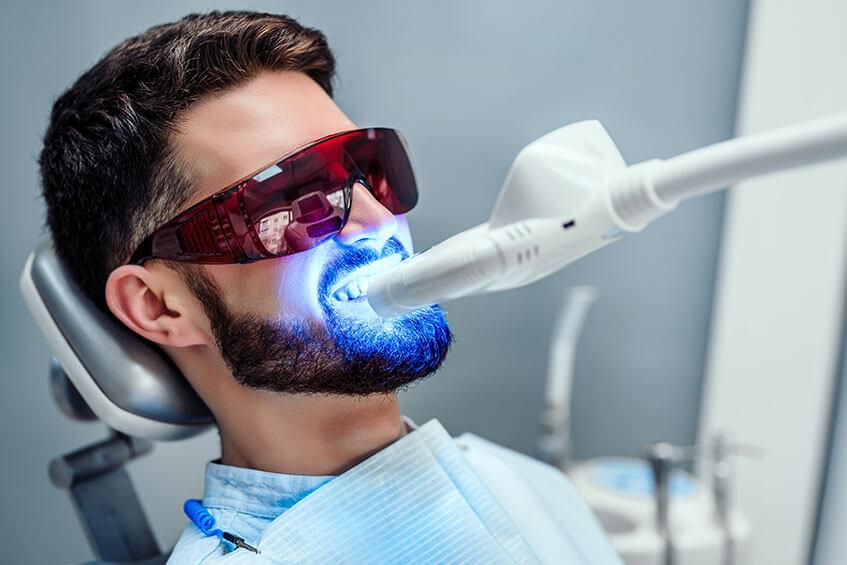 Zähne aufhellen lassen - Bleaching